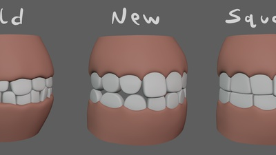 Victoria Teeth Update
