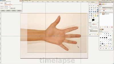 03 - Ortho Hand